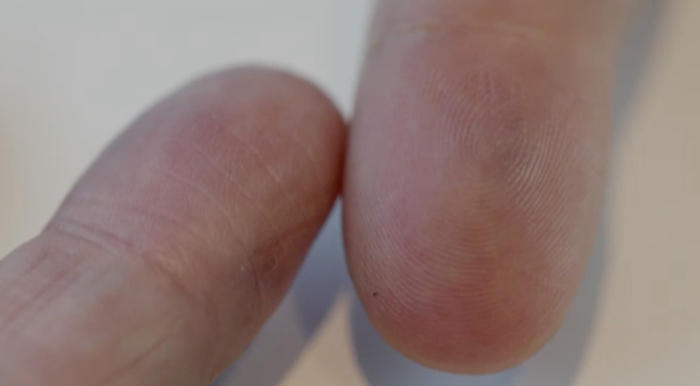 What happens when you're born without fingerprints? | Guide