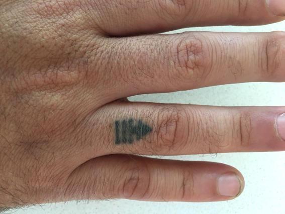 The author's North Pole tattoo