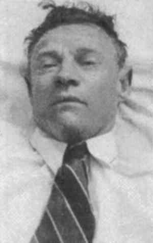 The Somerton Man corpse