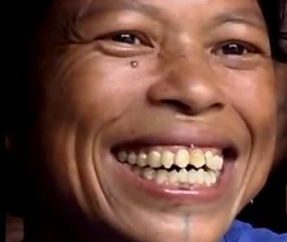 Tooth-sharpening