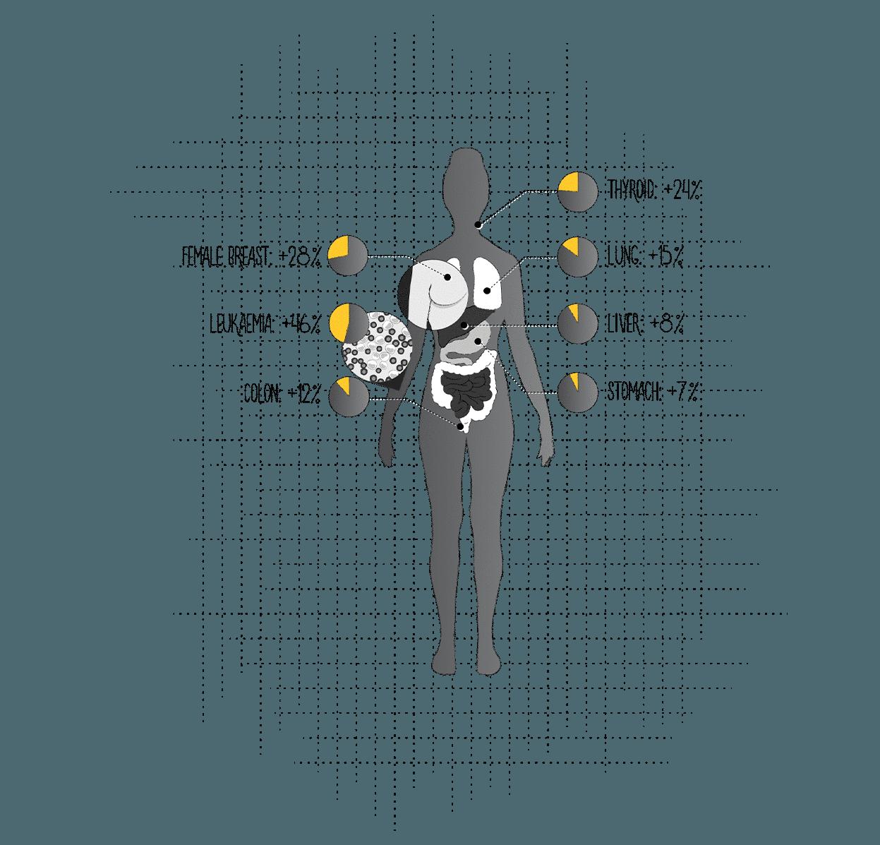 causes of hiroshima
