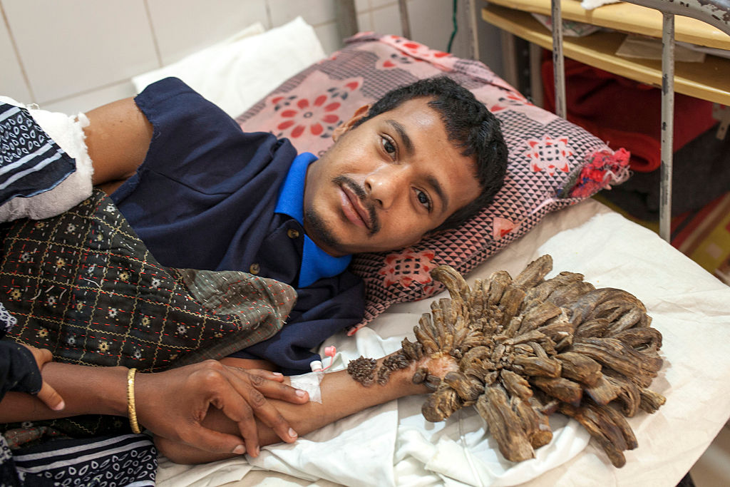 Tree Man Abul Bajandar Regains The Use Of His Hands