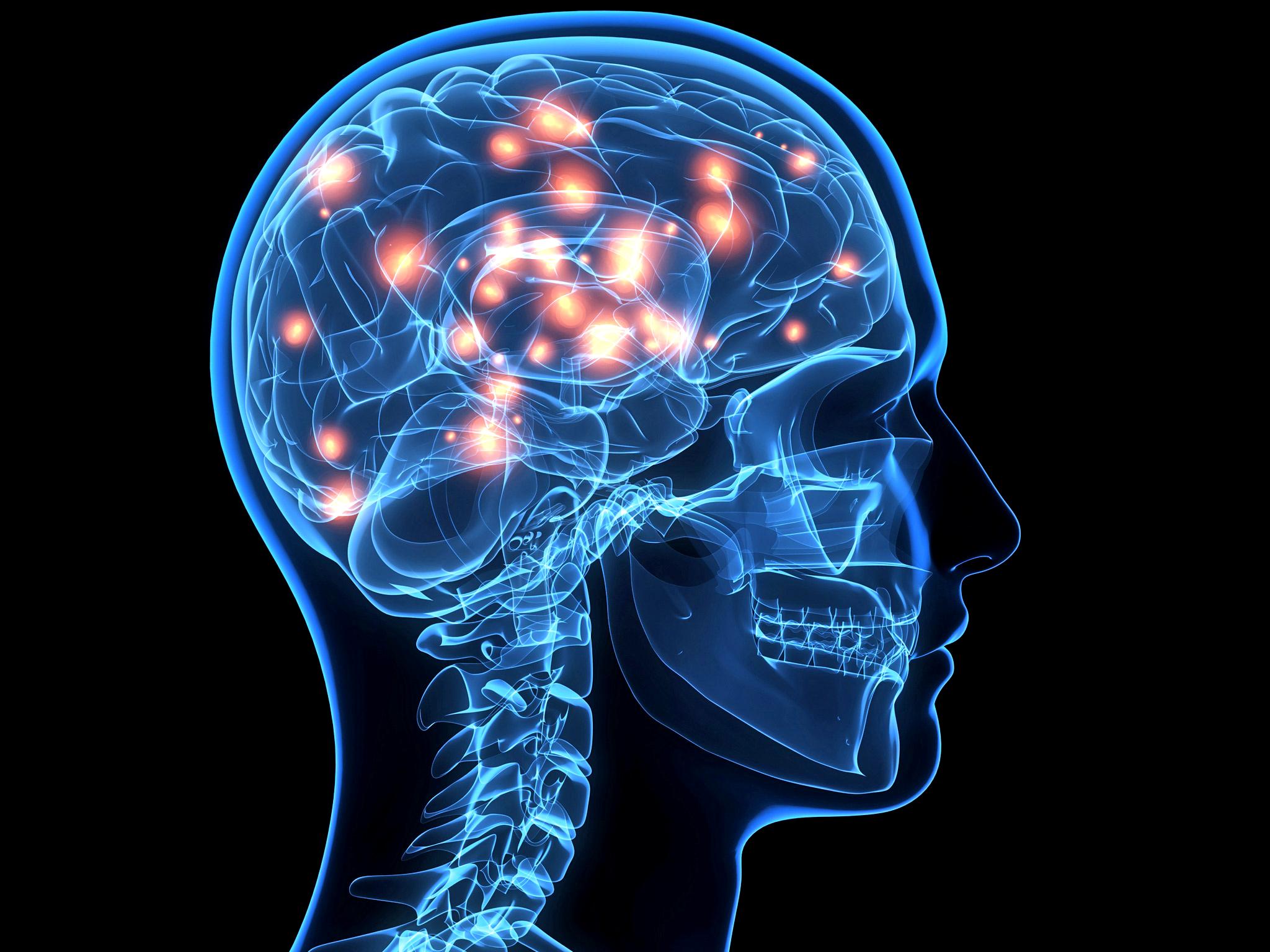 Medical Food For Alzheimer S