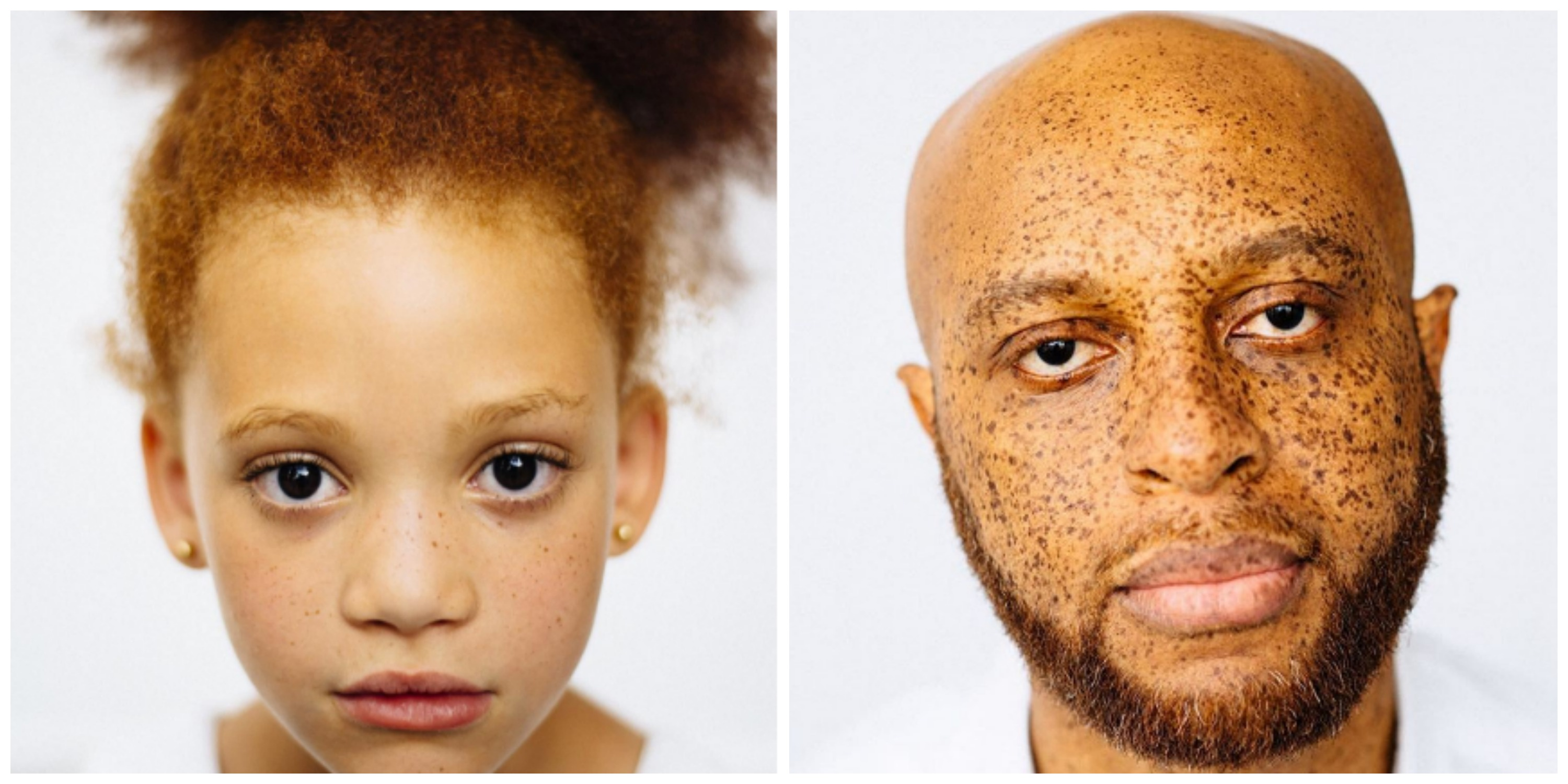 The Photos That Prove Not All Redheads Are White Sbs Life