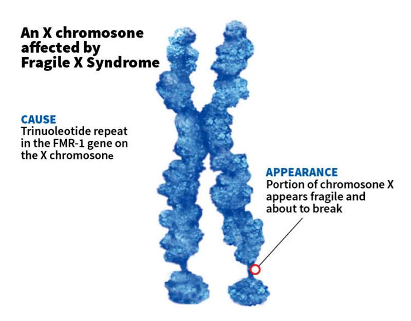The syndrome was named for the appearance of the affected X chromosome. (Illustration: Scientific American).