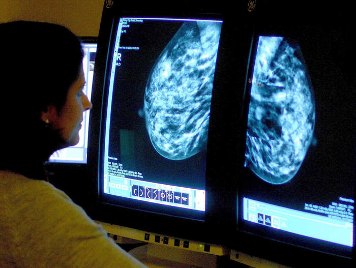 How obesity causes cancer, and may make screening and treatment harder