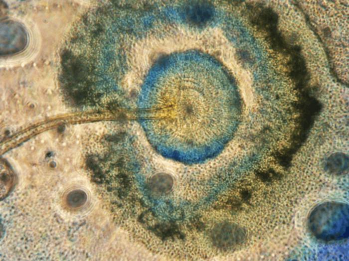 Aspergillus niger, the fungal dandelion