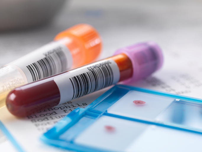 Blood and urine samples with medical results.