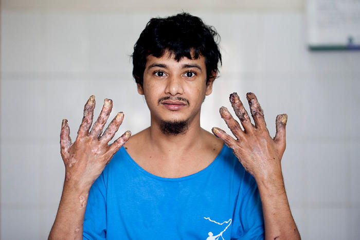 Abul Vajondar was identified with epidermodysplasia