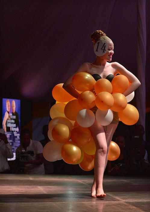 A contestant takes part in the first albino beauty pageant