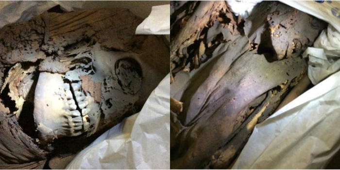 mummies provide clues for history of medicine