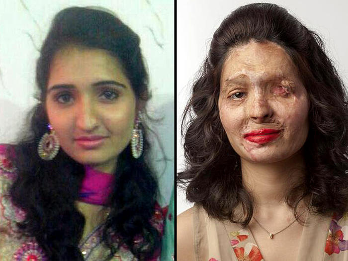 Reshma Khureshi before and after the acid attack.
