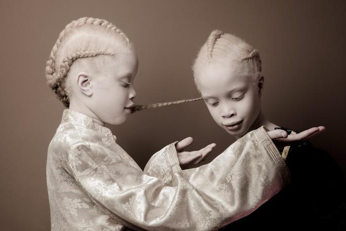 Albino twins Lara and Mara Bawar