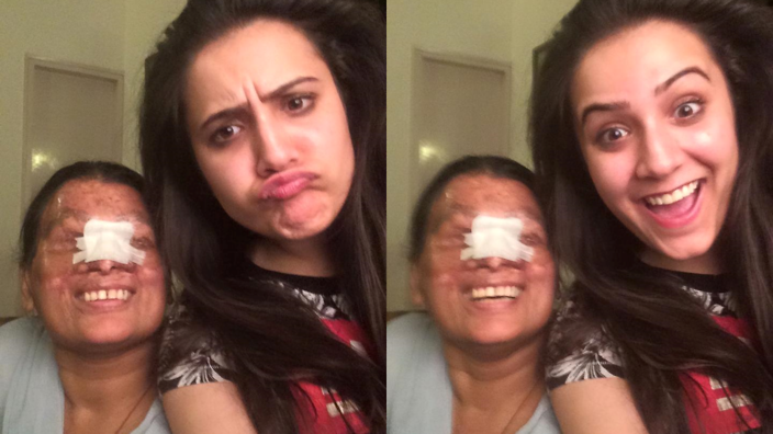 Powerful images of acid attack survivors reveal the true