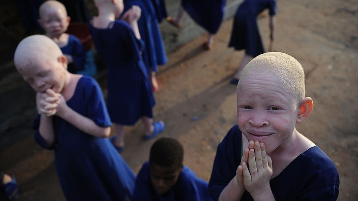 People with albinism in Africa are being hunted for body