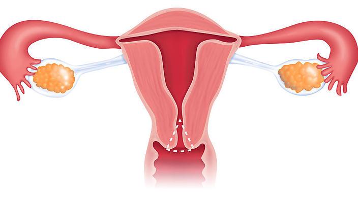 Cervical conization