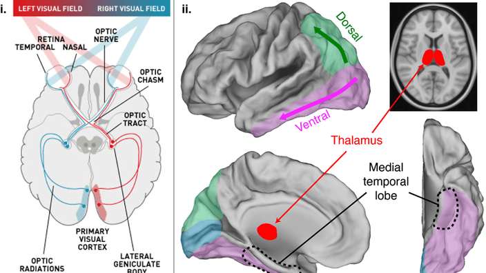 Light arriving from the right visual field is processed in the left hemisphere of the brain and vice-versa.