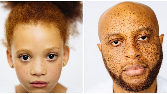 The photos that prove not all redheads are white | SBS Life