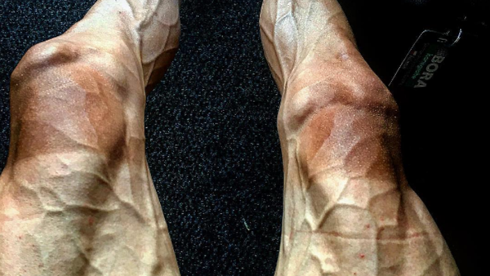 Polish cyclist shows off legs after Tour de France - and it's terrifying!